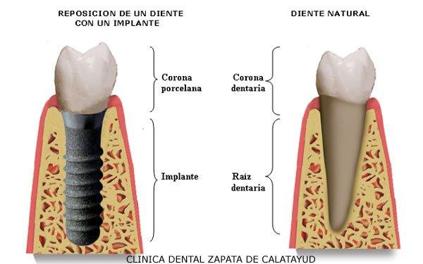 Implantologia clinica dental aranjuez
