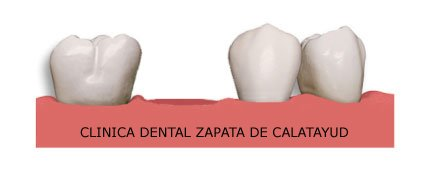 Reponer nuestros dientes perdidos