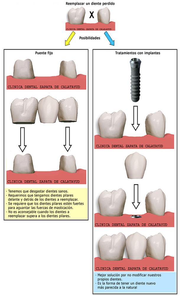 Tratamientos en la reposición de los dientes perdidos